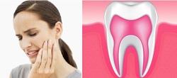 Воспаление десны после лечения зуба